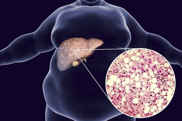 lượng mỡ thừa tích tụ ngày càng lớn trong gan